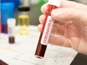 Россия коронавирусга қарши вакцина қачон тайёр бўлишини маълум қилди