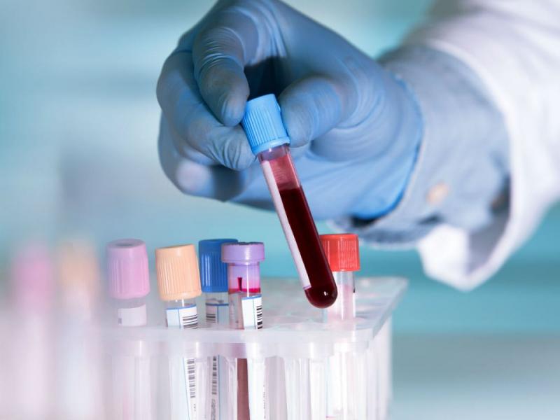 Italiyada 2019 yil sentyabrdagi qon namunalarida koronavirusga qarshi antitana topildi