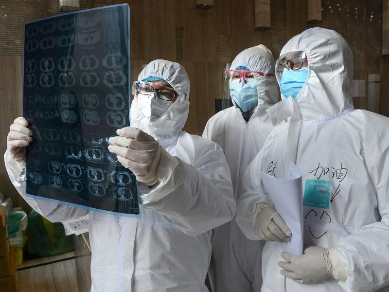 Шифокорлар коронавируснинг янги аломатларини аниқлади
